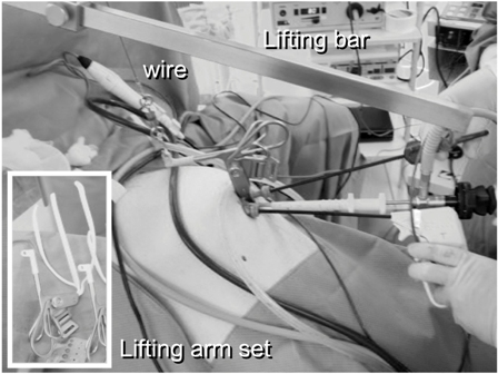Figure 2: The operating field was created using the original bar abdominal wall-lift method with a rigid bar.